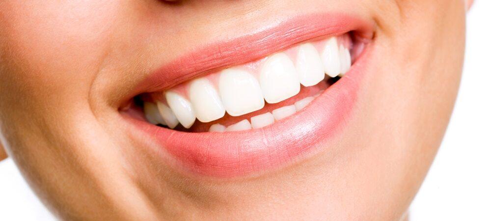 10 Best Teeth Whitening Dentists in Dubai