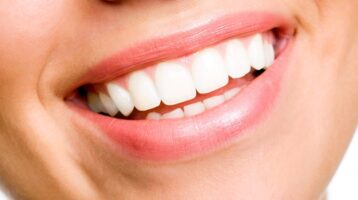 10 Best Teeth Whitening Dentists in Dubai