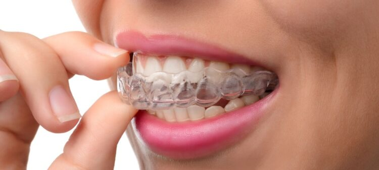 5 Best Invisalign Orthodontists in Dubai
