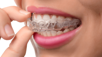 10 Best Invisalign Orthodontists in Dubai (Prices & Reviews)