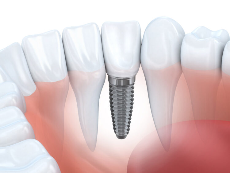 10 Best Dental Implants Dentists in Dubai